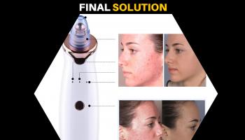 #1 Lumae skin Microdermabrasion – 100% Facial Scars Gone!!